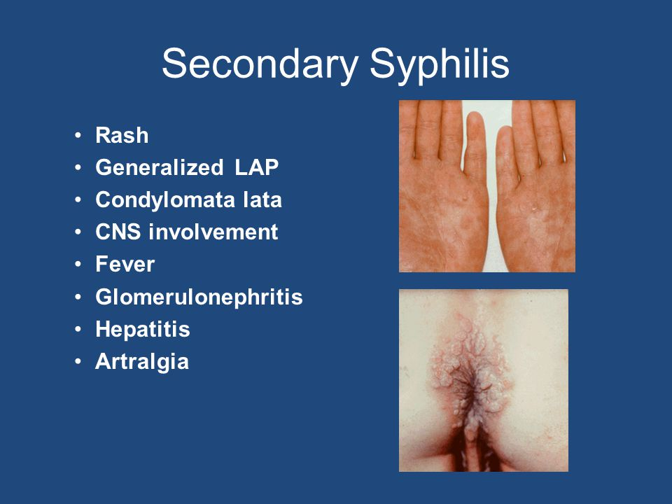 Secondary Syphilis Rash Generalized LAP Condylomata lata
