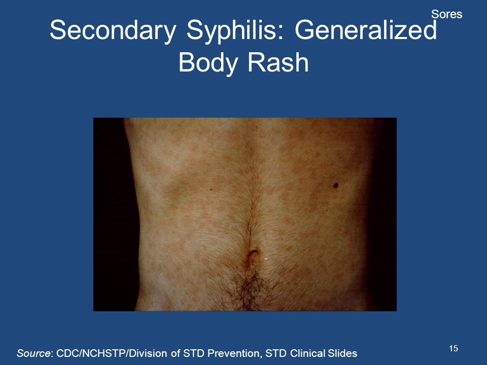 Secondary Syphilis: Generalized Body Rash