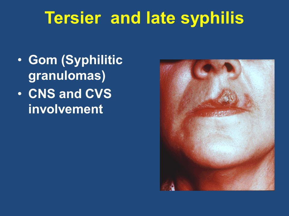 Tersier and late syphilis
