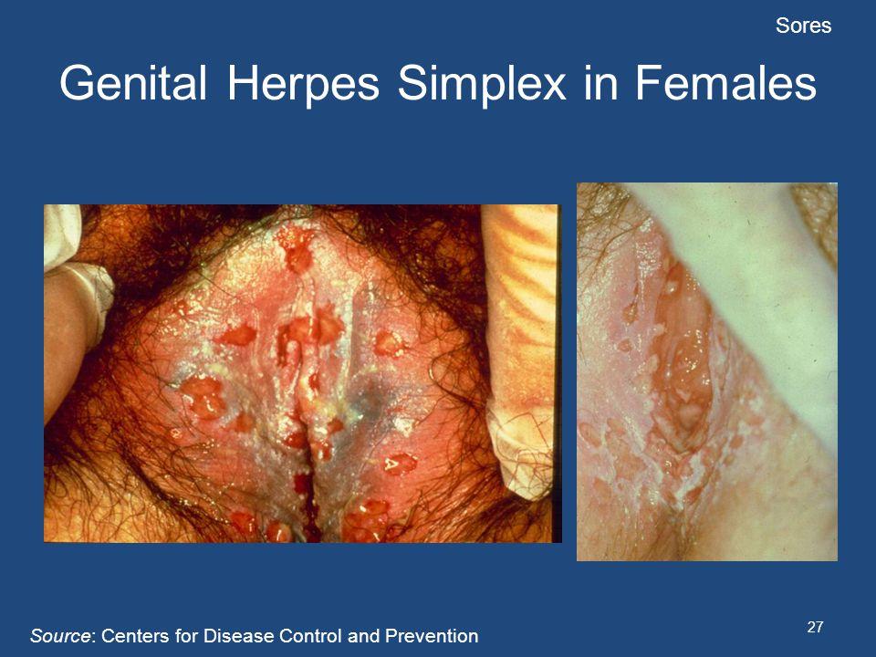 Genital Herpes Simplex in Females