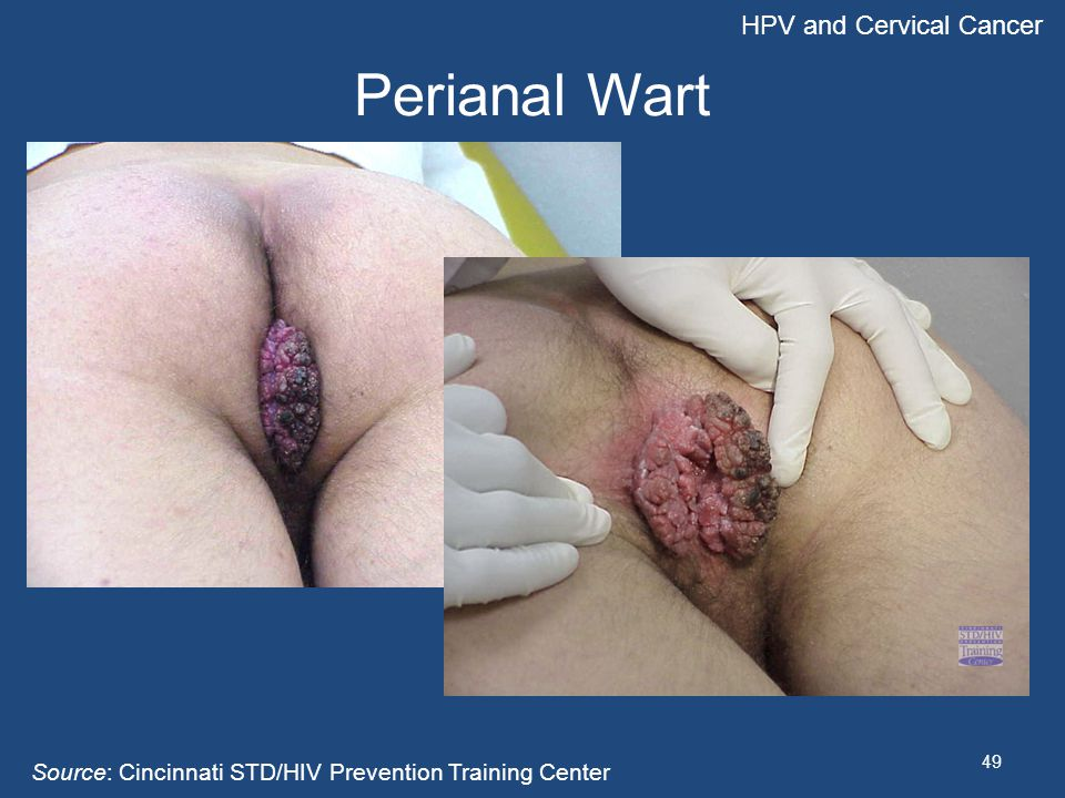 Perianal Wart HPV and Cervical Cancer