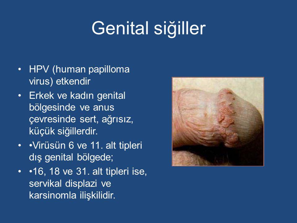 Genital siğiller HPV (human papilloma virus) etkendir
