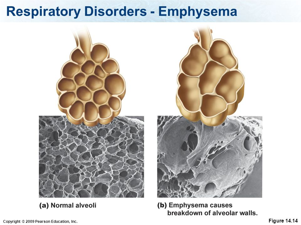 Respiratory Disorders - Emphysema