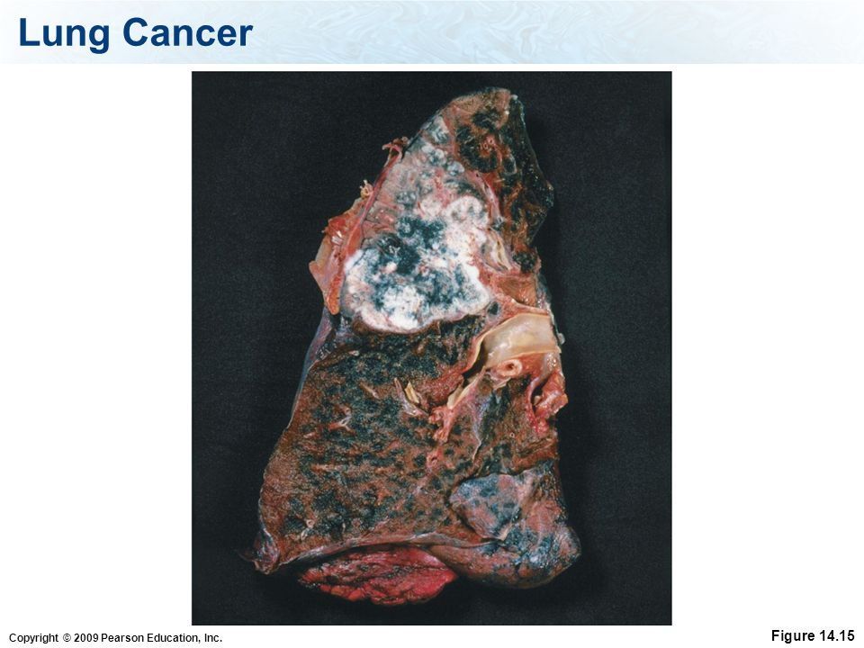 Lung Cancer Figure 14.15