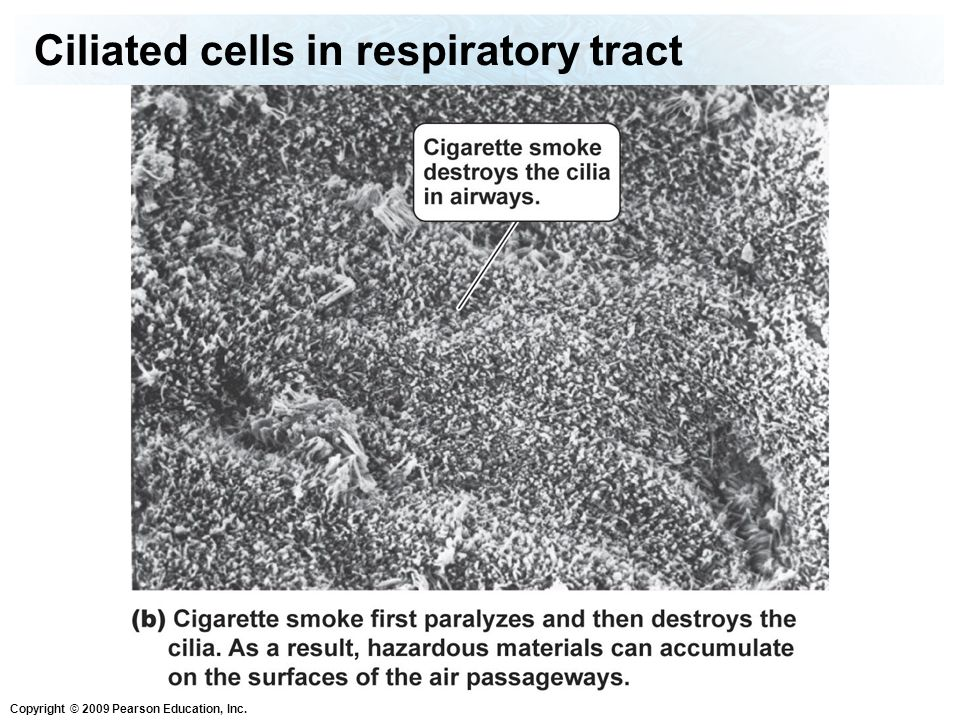 Ciliated cells in respiratory tract
