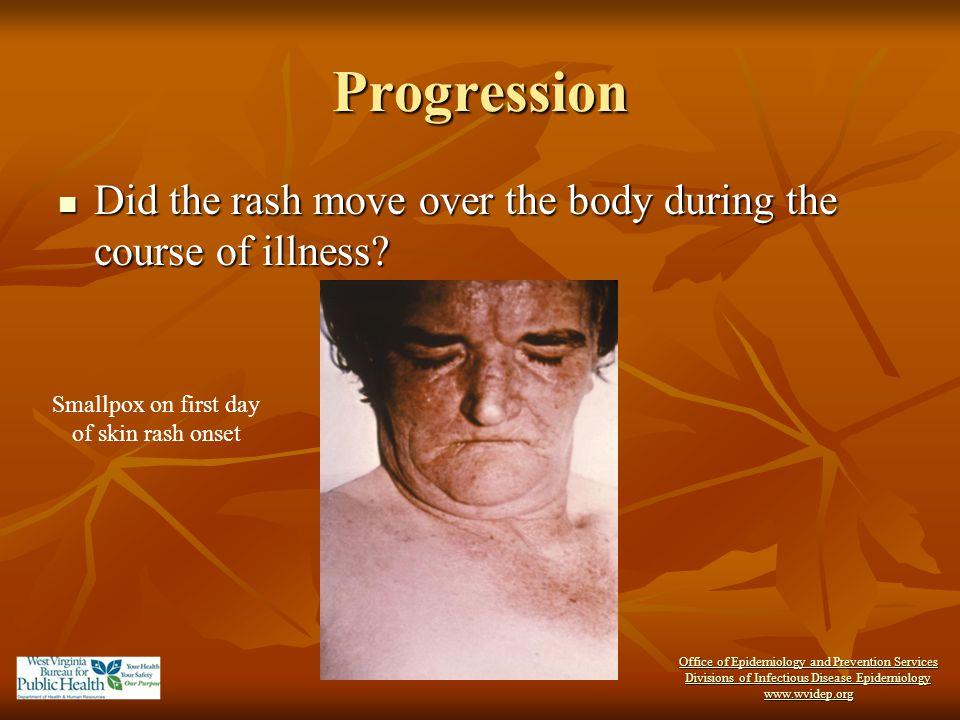 Progression Did the rash move over the body during the course of illness Smallpox on first day of skin rash onset.