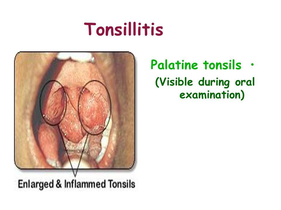 Tonsillitis Palatine tonsils (Visible during oral examination)