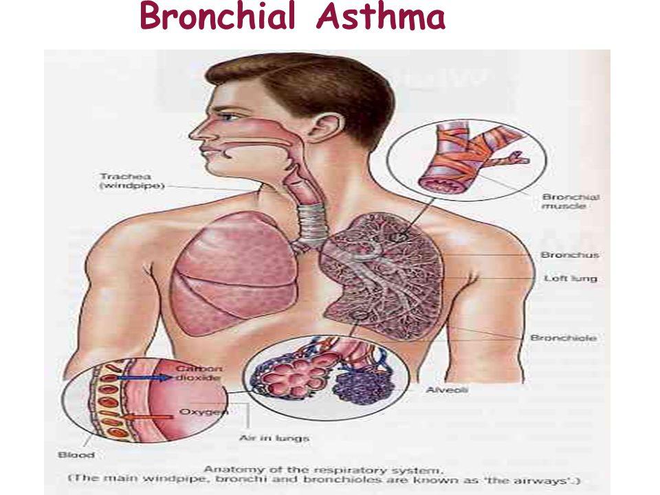 bronchioles asthma