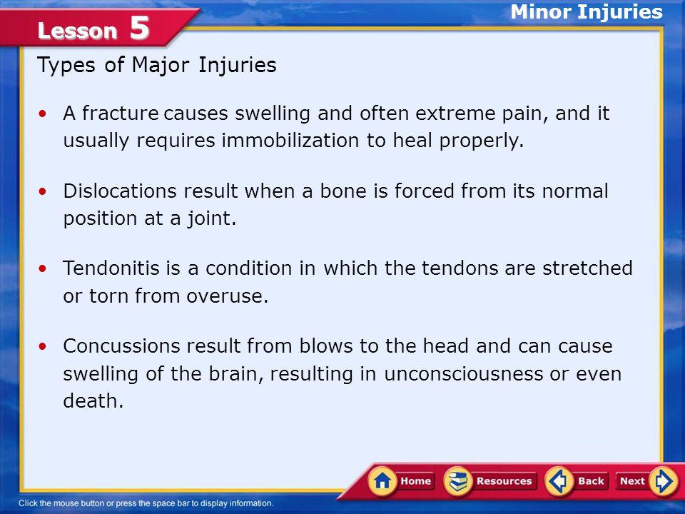 Types of Major Injuries