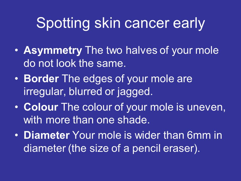 Spotting skin cancer early