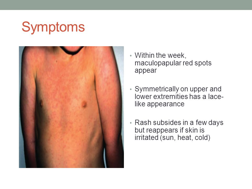 Symptoms Within the week, maculopapular red spots appear