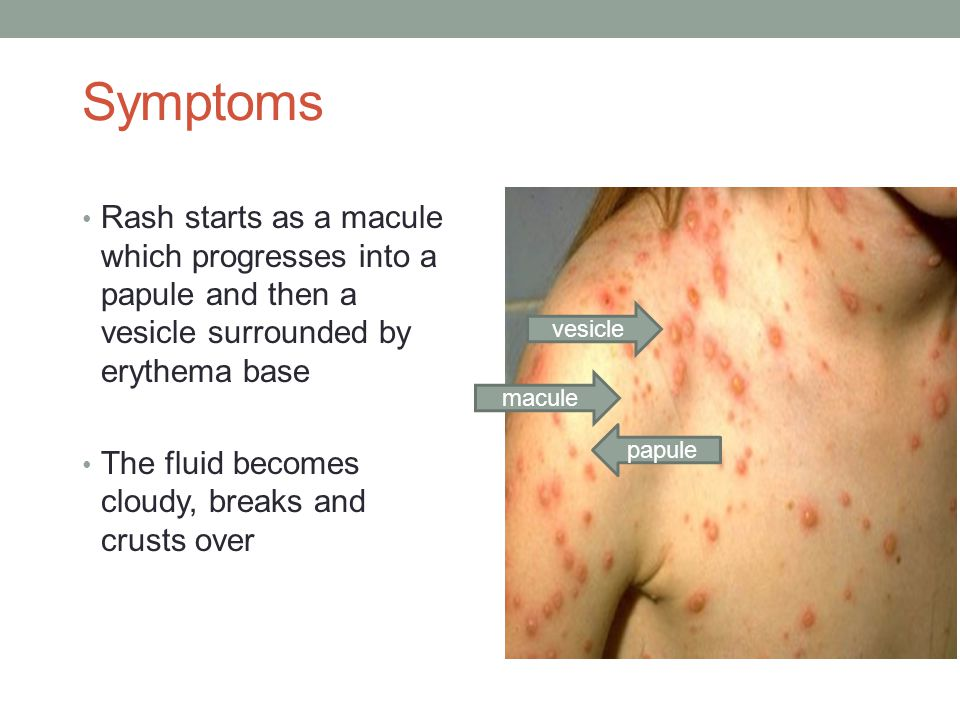 Symptoms Rash starts as a macule which progresses into a papule and then a vesicle surrounded by erythema base.