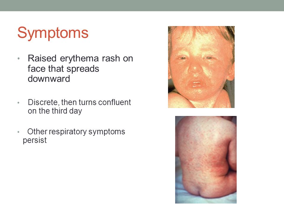 Symptoms Raised erythema rash on face that spreads downward