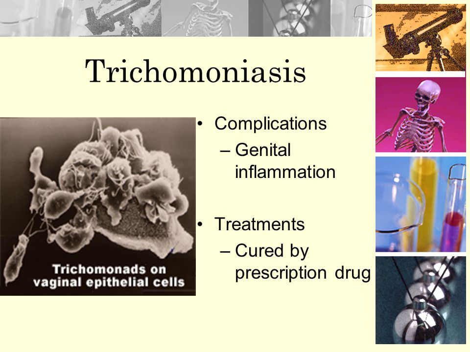 Trichomoniasis Complications Genital inflammation Treatments