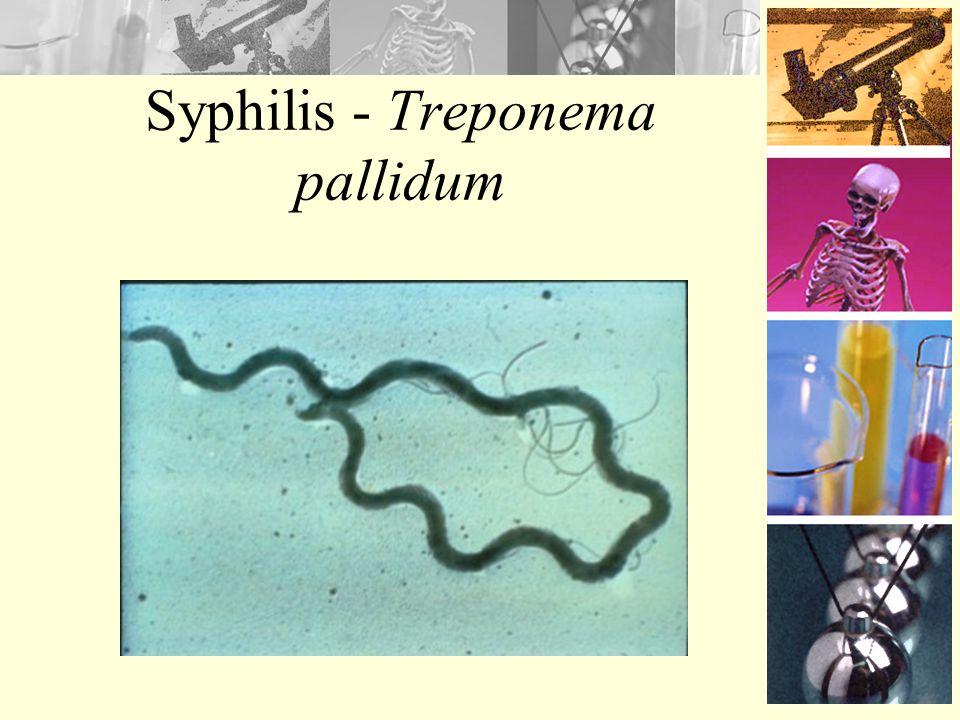 Syphilis - Treponema pallidum