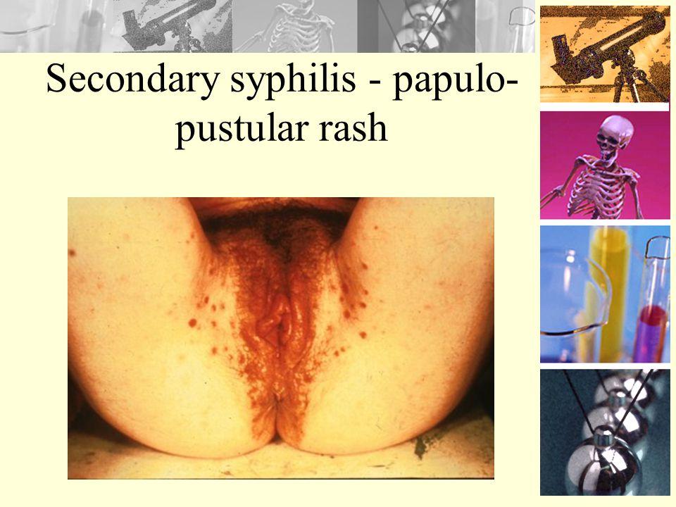Secondary syphilis - papulo-pustular rash