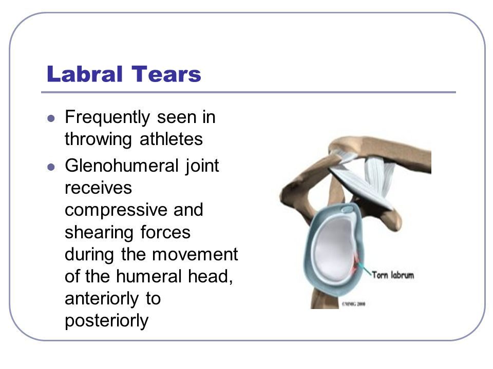 Labral Tears Frequently seen in throwing athletes