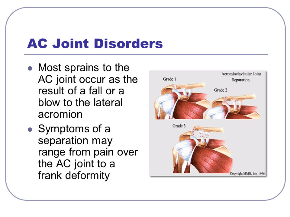 AC Joint Disorders Most sprains to the AC joint occur as the result of a fall or a blow to the lateral acromion.
