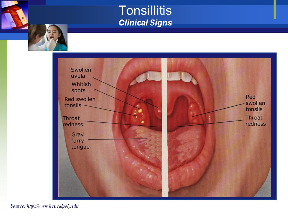 Tonsillitis Clinical Signs