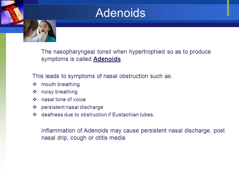 Adenoids The nasopharyngeal tonsil when hypertrophied so as to produce symptoms is called Adenoids.