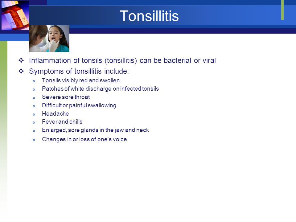 Tonsillitis Inflammation of tonsils (tonsillitis) can be bacterial or viral. Symptoms of tonsillitis include: