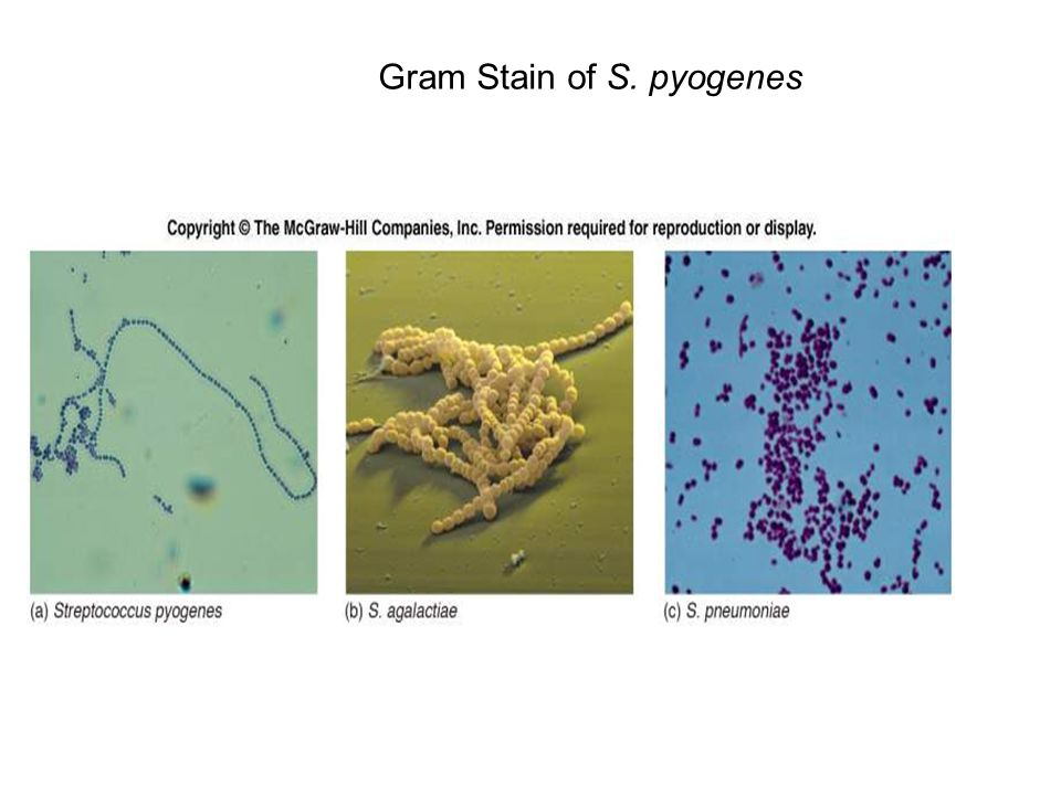 Gram Stain of S. pyogenes