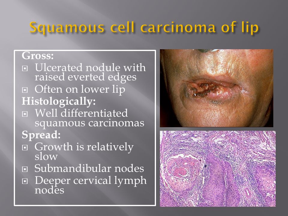Squamous cell carcinoma of lip