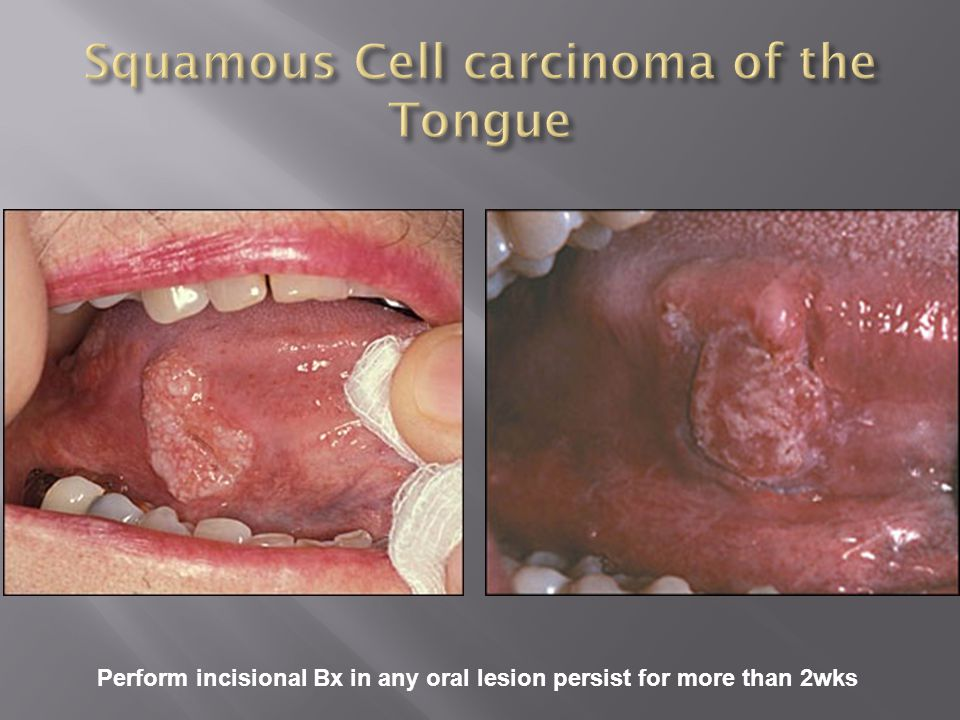 Squamous Cell carcinoma of the Tongue