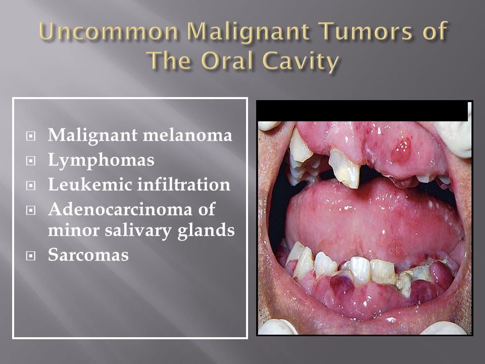 Uncommon Malignant Tumors of The Oral Cavity