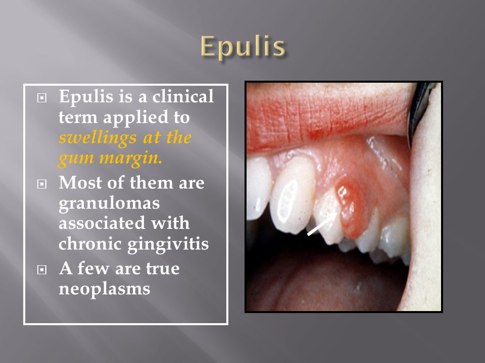 Epulis Epulis is a clinical term applied to swellings at the gum margin. Most of them are granulomas associated with chronic gingivitis.