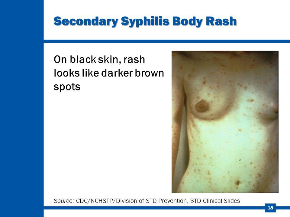 Secondary Syphilis Body Rash