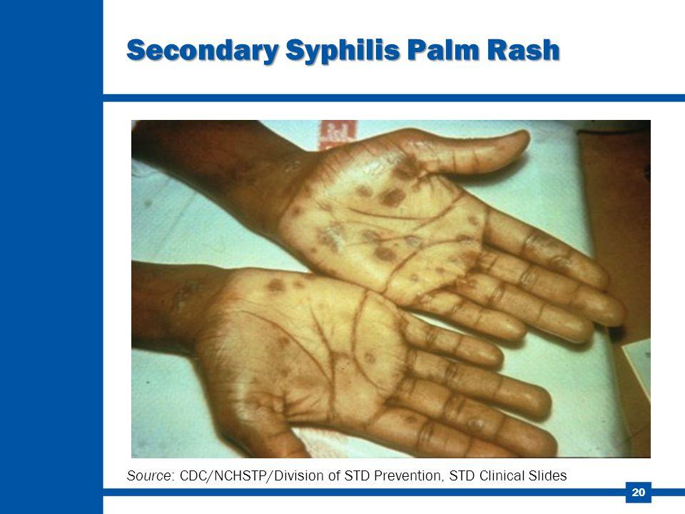 Secondary Syphilis Palm Rash
