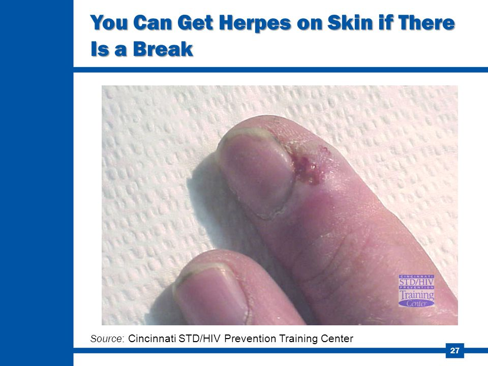 You Can Get Herpes on Skin if There Is a Break