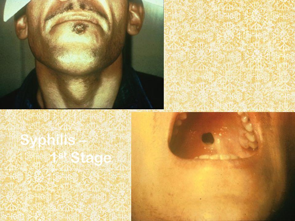 Syphilis – 1st Stage