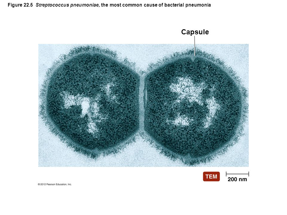 Figure 22.5 Streptococcus pneumoniae, the most common cause of bacterial pneumonia