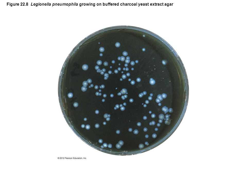Figure 22.8 Legionella pneumophila growing on buffered charcoal yeast extract agar