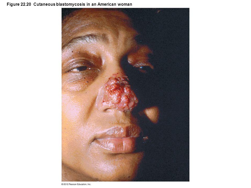 Figure 22.20 Cutaneous blastomycosis in an American woman