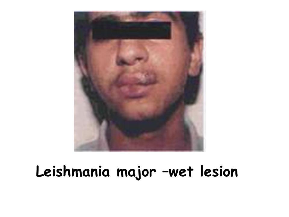 Leishmania major –wet lesion