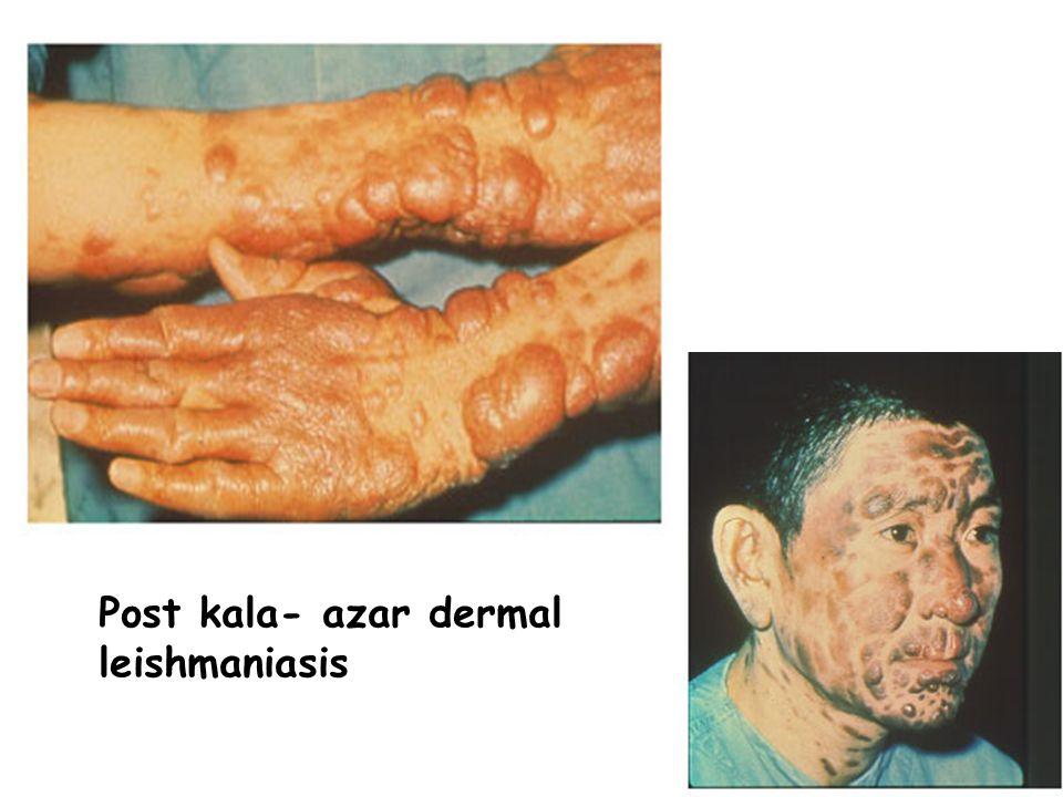 Post kala- azar dermal leishmaniasis