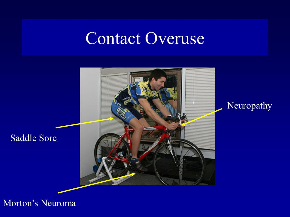 Contact Overuse Neuropathy Saddle Sore Morton's Neuroma