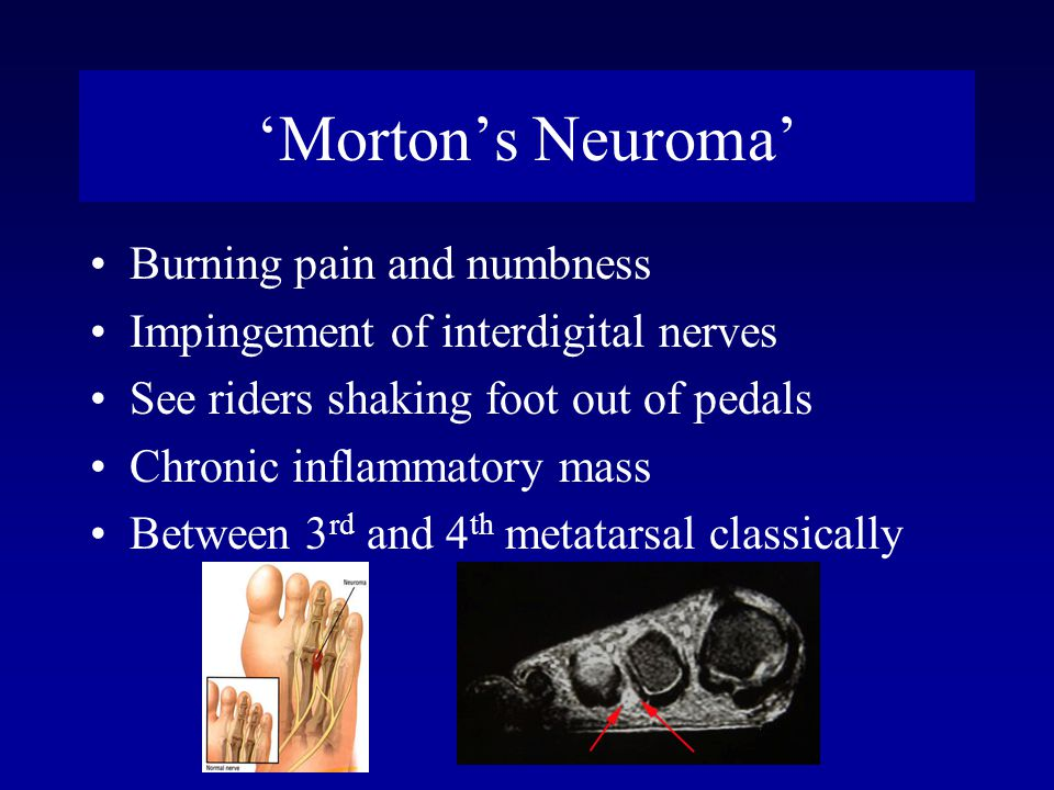 'Morton's Neuroma' Burning pain and numbness