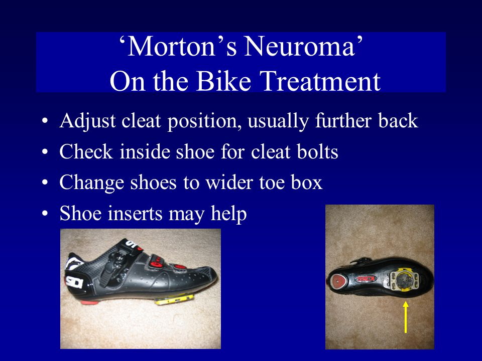 'Morton's Neuroma' On the Bike Treatment