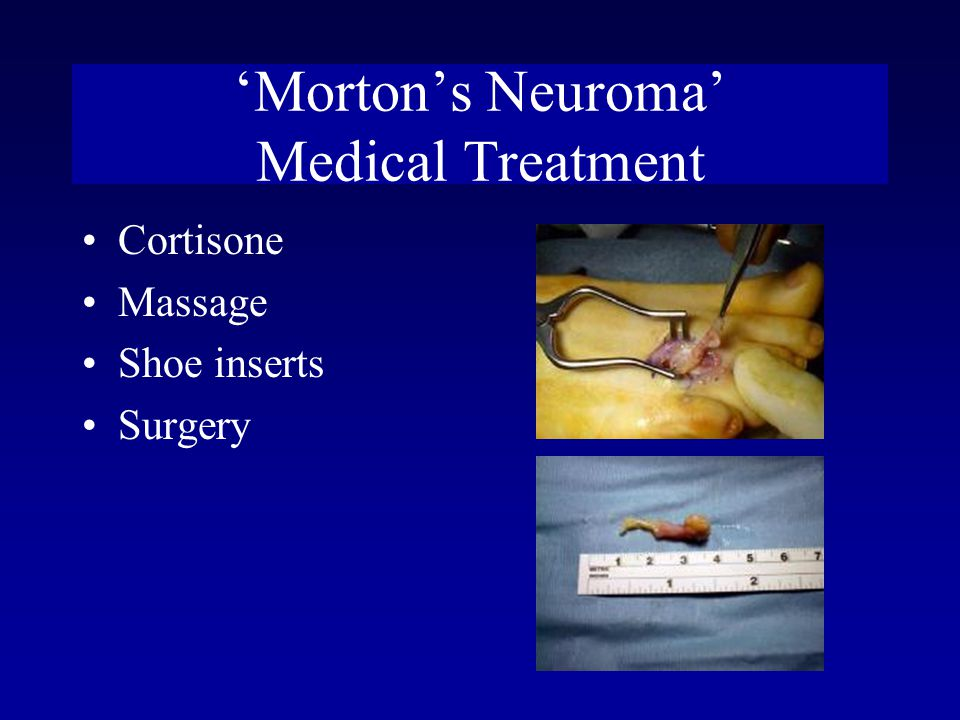 'Morton's Neuroma' Medical Treatment