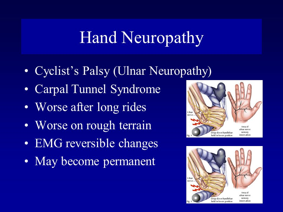 Hand Neuropathy Cyclist's Palsy (Ulnar Neuropathy)