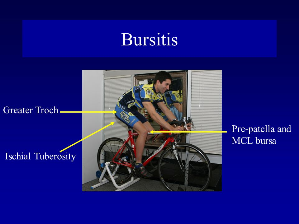 Bursitis Greater Troch Pre-patella and MCL bursa Ischial Tuberosity