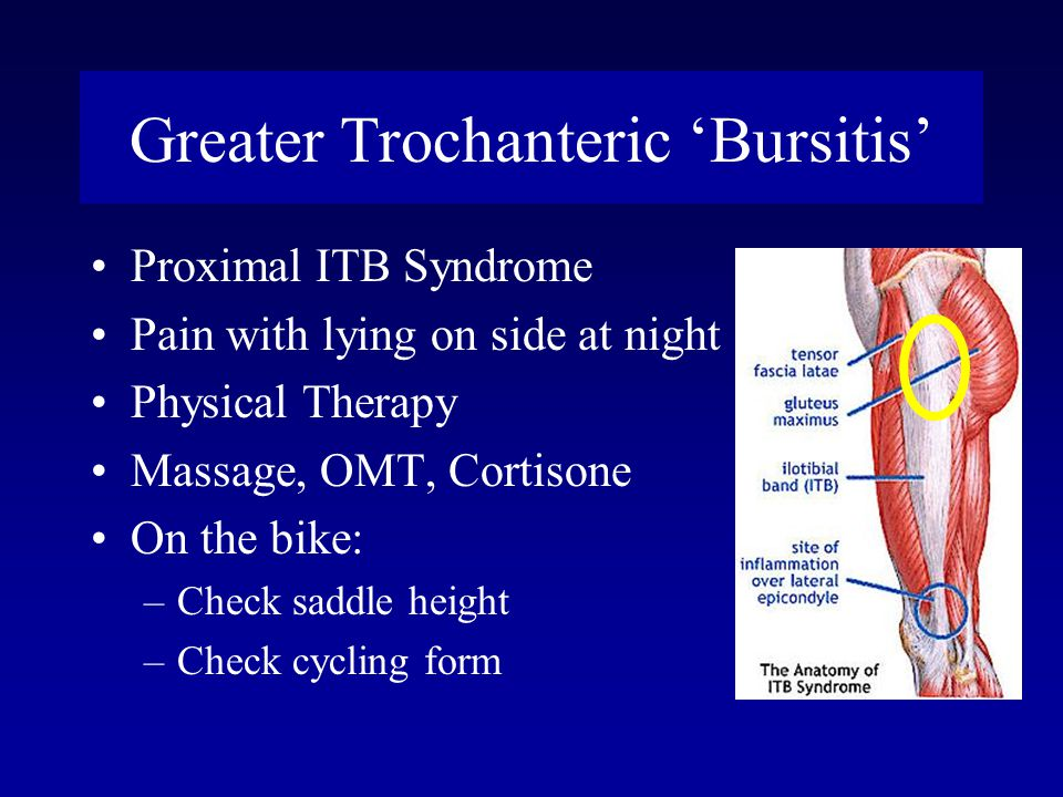 Greater Trochanteric 'Bursitis'