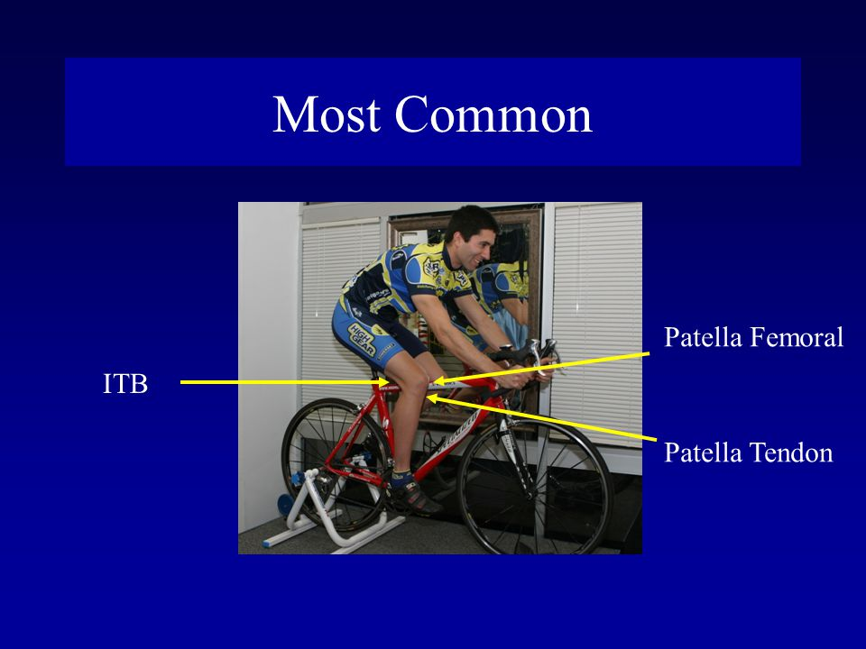Most Common Patella Femoral ITB Patella Tendon