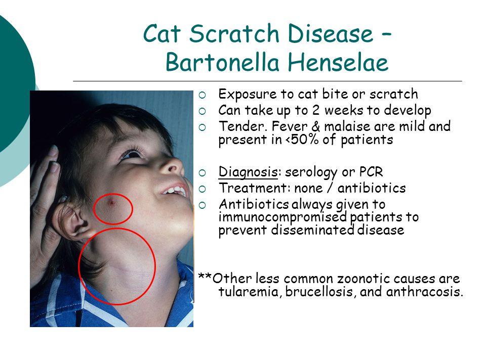 Cat Scratch Disease – Bartonella Henselae