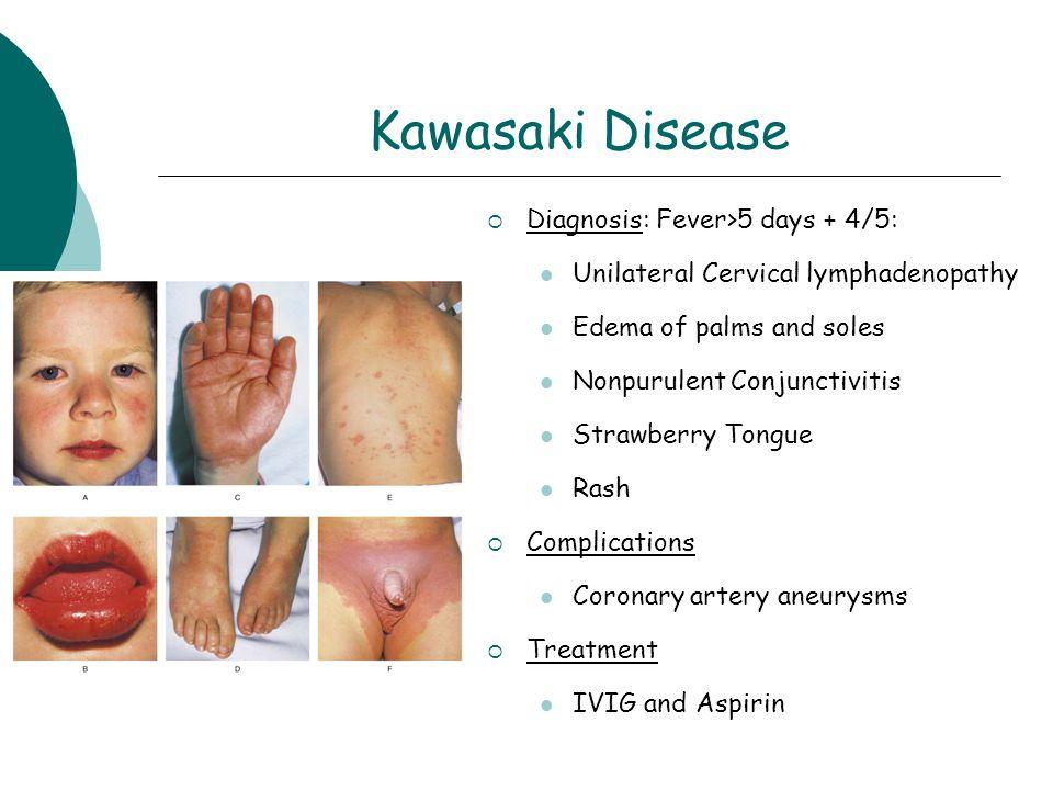 Kawasaki Disease Diagnosis: Fever>5 days + 4/5: