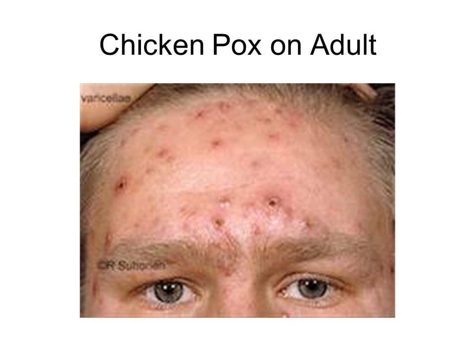 Chicken Pox on Adult